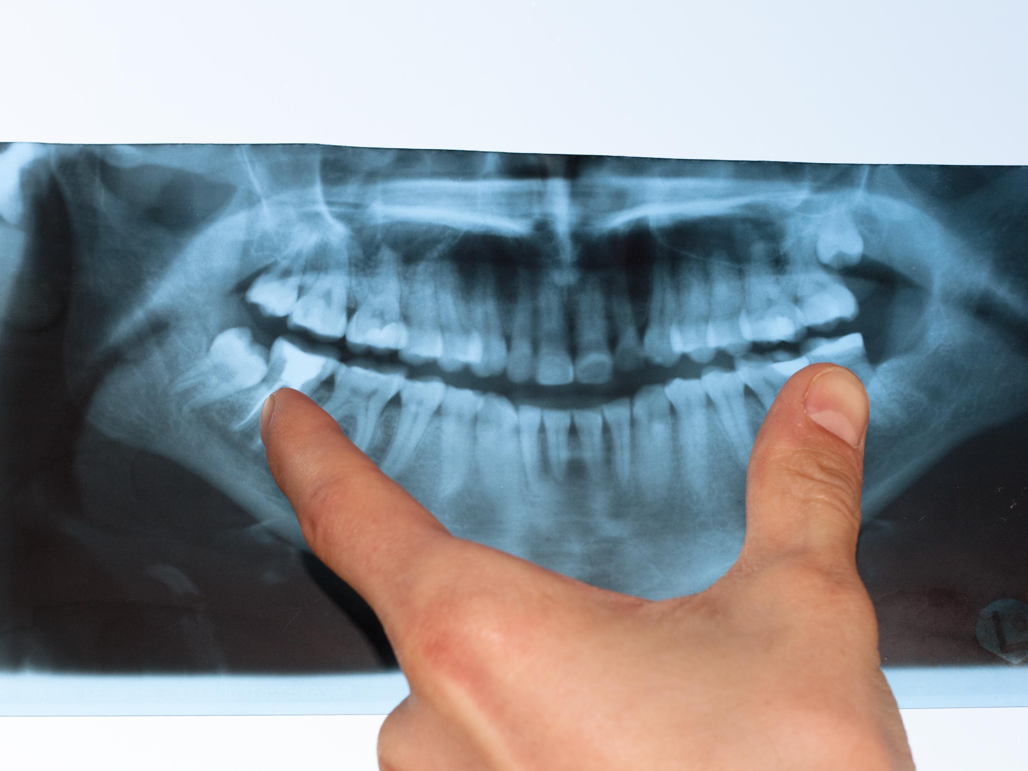 myths about gum disease