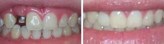 family dentistry canyon trails family dental goodyear az gallerypage dental implants 1