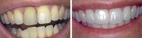 family dentistry canyon trails family dental goodyear az gallerypage dental implants