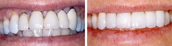 family dentistry canyon trails family dental goodyear az gallerypage porcelain fixed bridges 1