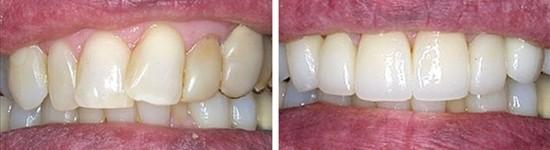 family dentistry canyon trails family dental goodyear az gallerypage porcelain fixed bridges