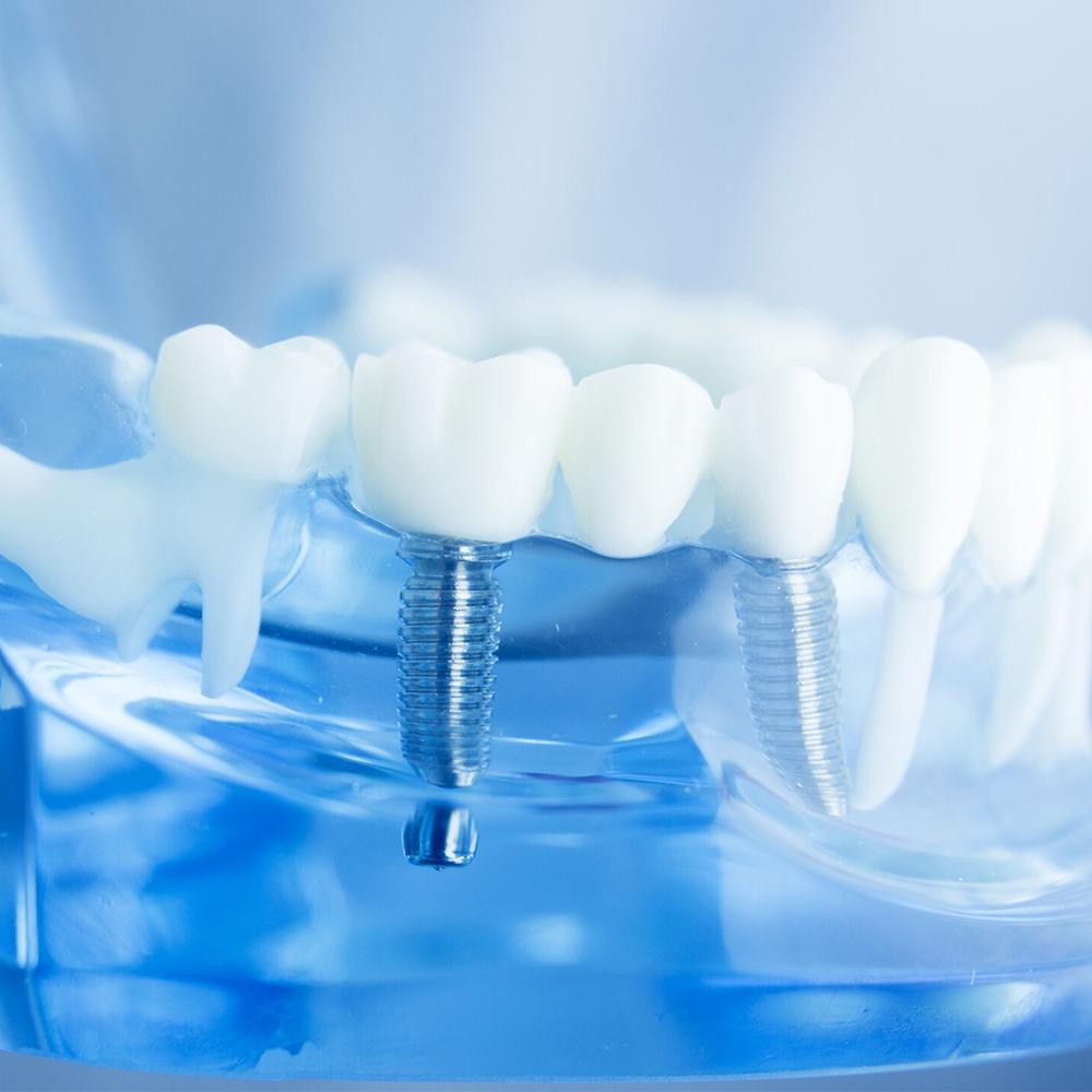 family dentistry canyon trails family dental goodyear az services dental implants
