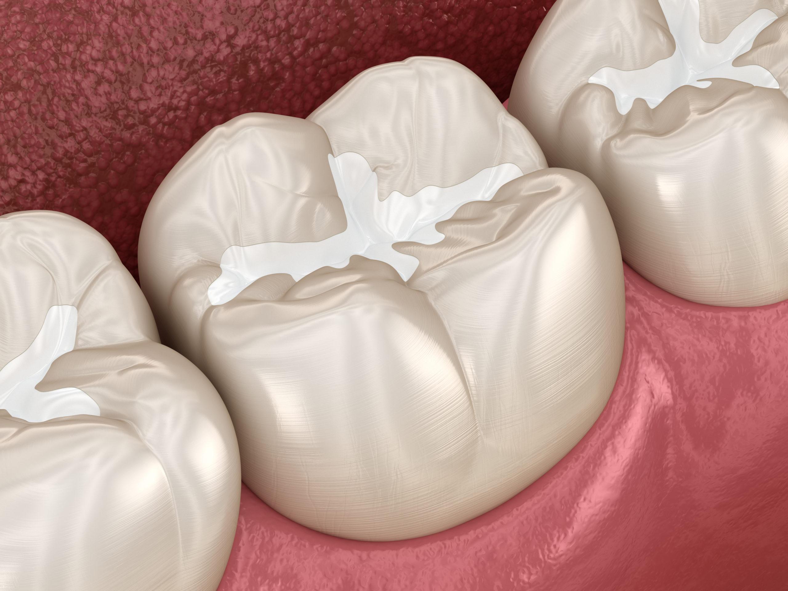 family dentistry canyon trails family dental goodyear az services dental sealants
